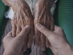 הזדקנות העור